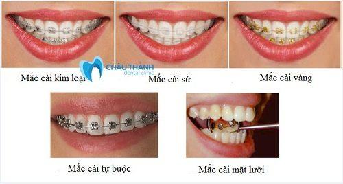 Niềng răng mắc cài 1