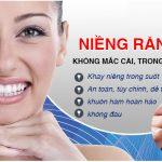 Niềng răng không mắc cài – Răng đẹp, tính thẩm mỹ cao