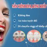 Niềng răng mắc cài – Liệu pháp chỉnh nha cho hàm răng đều, chắc chắn