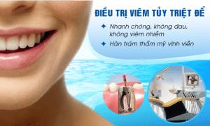 Điều trị tủy răng như thế nào là đúng?