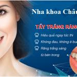 Tẩy trắng răng công nghệ cao – Cho răng sáng, rạng rỡ nụ cười