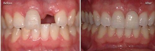 Kết quả khách hàng làm cầu răng sứ