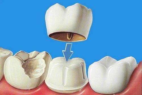 Bọc răng sứ là giải pháp chữa thiểu sản men răng cho kết quả cao