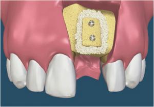Ghép xương trong cấy ghép răng Implant là gì?