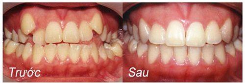 Niềng răng mắc cài 4