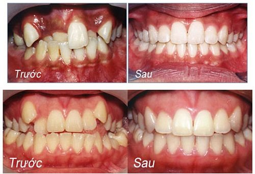 Kết quả hình ảnh cho niềng răng thẩm mỹ châu thành