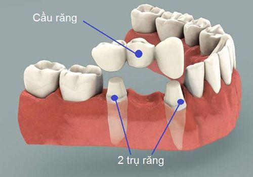 Cầu răng sứ  1