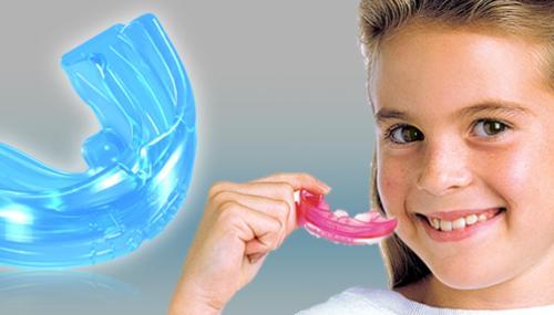 Niềng răng mắc cài 2