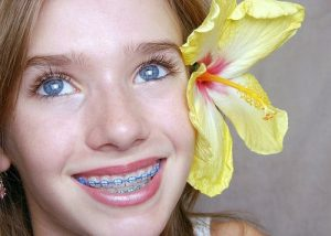 Chi phí niềng răng cho trẻ em là bao nhiêu?