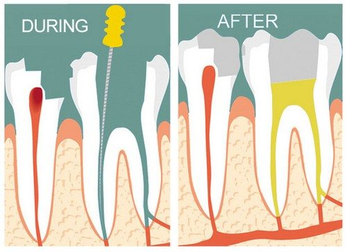 Mô phỏng hiệu quả sau khiu điều trị tủy răng