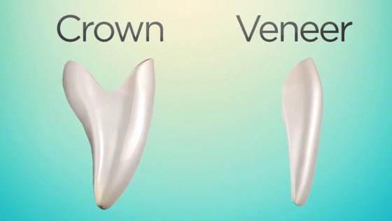 Bọc răng sứ thẩm mỹ 2
