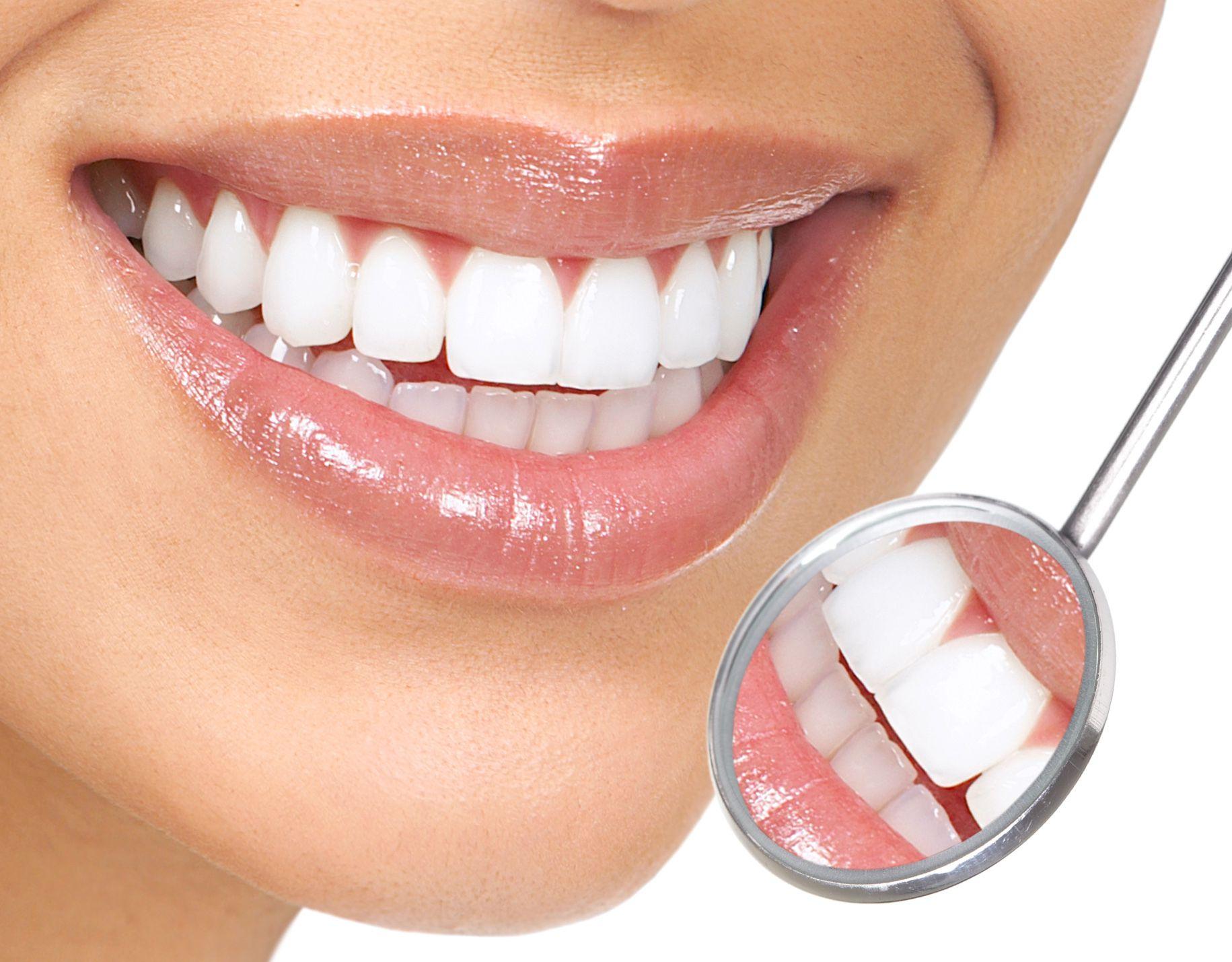 Loại răng sứ nào TỐT, SÁNG BÓNG, CHẮC KHỎE nhất??? 2