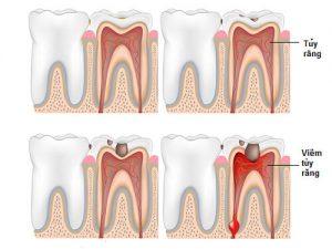 Chữa tuỷ răng có đau không ?