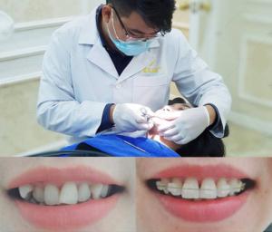 Niềng răng thẩm mỹ giá bao nhiêu