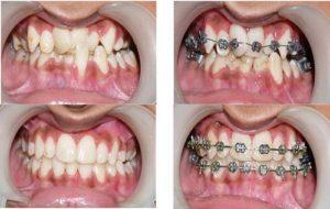 Niềng răng ở đâu tốt nhất tại hà nội