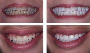 Bọc răng sứ thẩm mỹ giá bao nhiêu