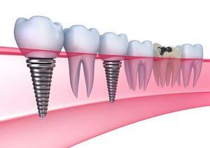 Cấy ghép Implant có đau không? Bác sĩ Hòa trả lời