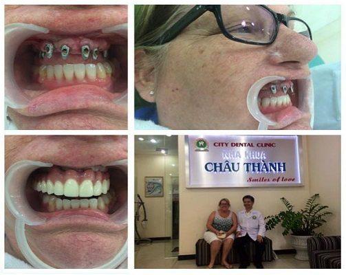 Kết quả hình ảnh cho Làm răng implant ở đâu tốt nhất nha khoa chauthanh