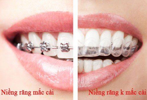 Niềng răng là gì 2
