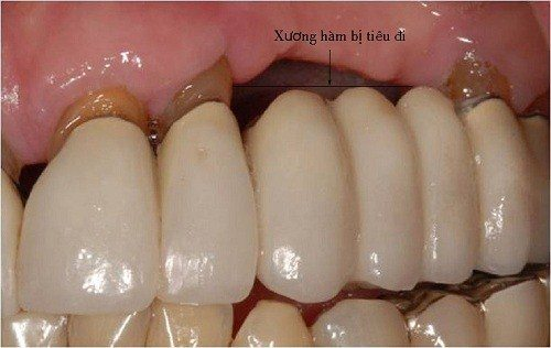 Tình trạng tiêu xương hàm khi mang hàm tháo lắp hoặc làm cầu răng sứ