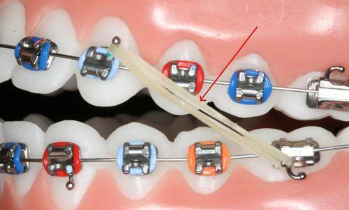 Niềng răng là gì 3