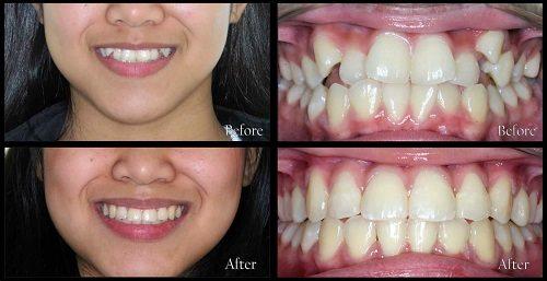 Quy trình niềng răng 4