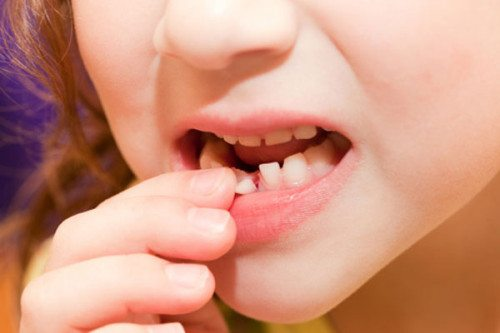 Răng sữa lung lay có nên nhổ không?
