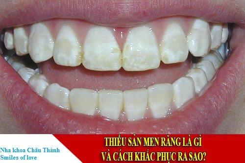 thiểu sản men răng 1